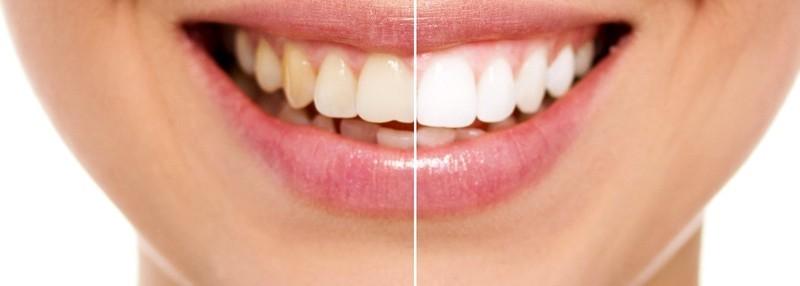 Clareamento Dental A Laser Como Funciona