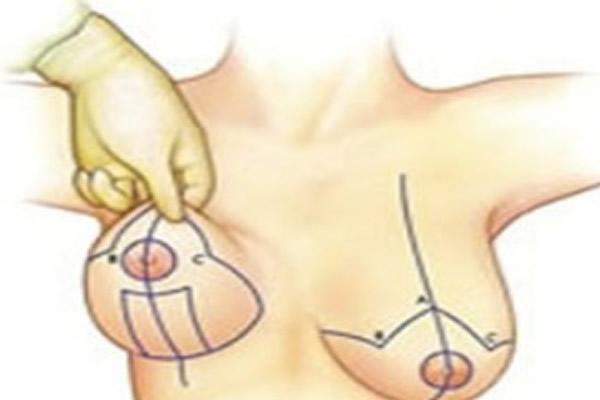 cirurgia-de-reducao-das-mamas-precos