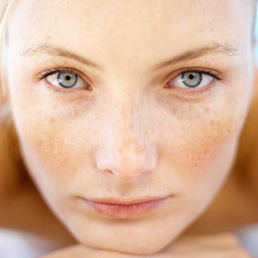 Vitacid Plus para Manchas na Pele: Como usar