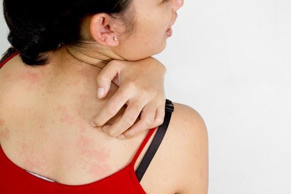 causas e sintomas bolinhas vermelha pelo corpo